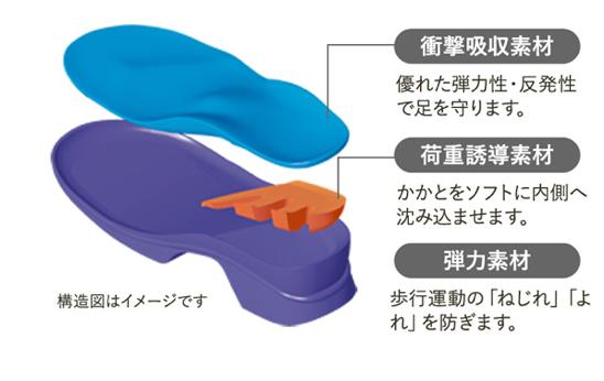 アーチフィッターの構造