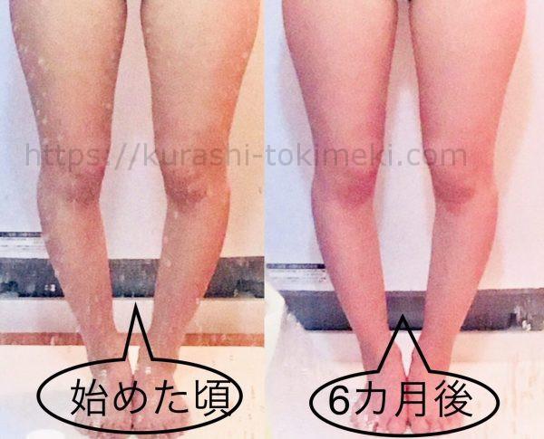 半年間でのO脚の変化